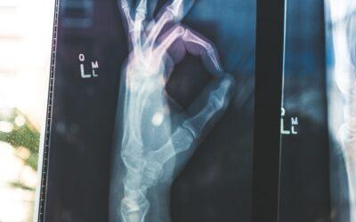 Hvor bruges X-ray?